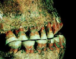 Zęby człowieka epoki kamienia.