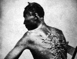 Mężczyzna ze śladami po bacie. (fot. domena publiczna)