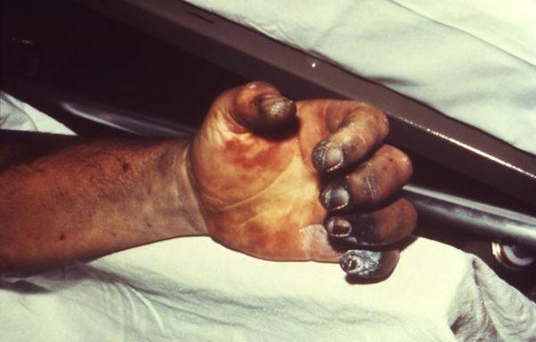 """Jednym z objawów dżumy Justyniana, która pojawiła się niedługo po """"najgorszym roku w dziejach"""" była martwica dłoni."""