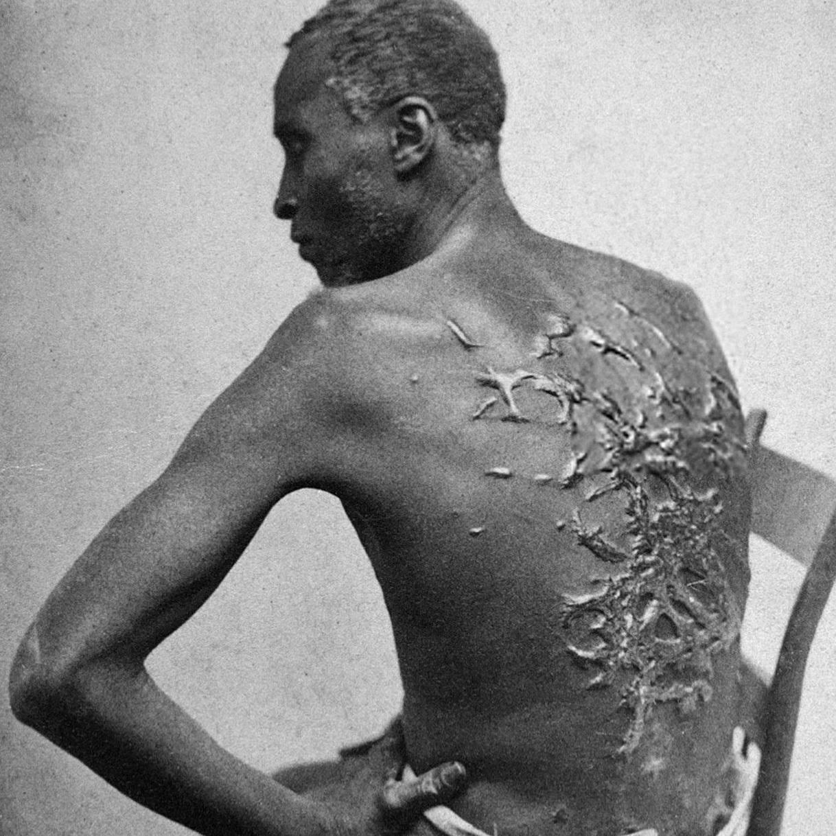 """Katowani za życia niewolnicy (na zdj. czarnoskóry mężczyzna z bliznami po batach, fotografia wykonana w Luizjanie w 1863 roku) nawet po śmierci nie zaznali spokoju. Profesorowie Penn wykorzystywali ich ciała jako """"pomoce dydaktyczne""""."""