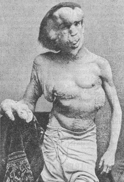 Joseph Merrick ze względu na swe deformacje budził ogromne zainteresowanie. W pewnym momencie opieką objęła go sama królowa Wiktoria.