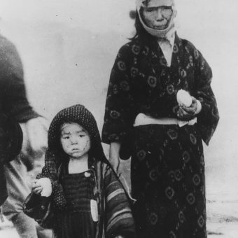 Wiele osób, którym udało się przeżyć atak, zginęło później w męczarniach z powodu choroby popromiennej i nowotworów (na zdj. kobieta i dziecko dzień po zbombardowaniu Nagasaki).