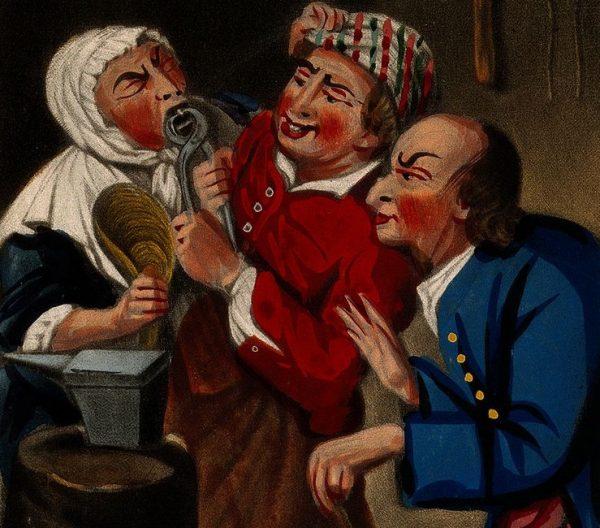 Zanim nauczono się borować zęby, jedyną metodą ich leczenia było wyrywanie.
